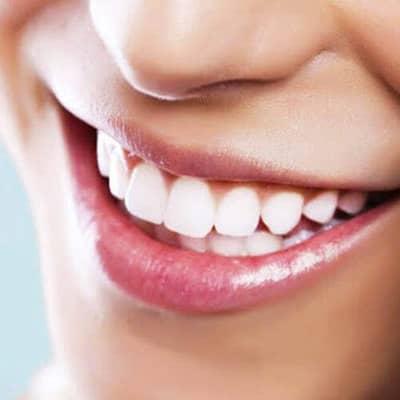 Teeth Whitening Treatment (1 Session)