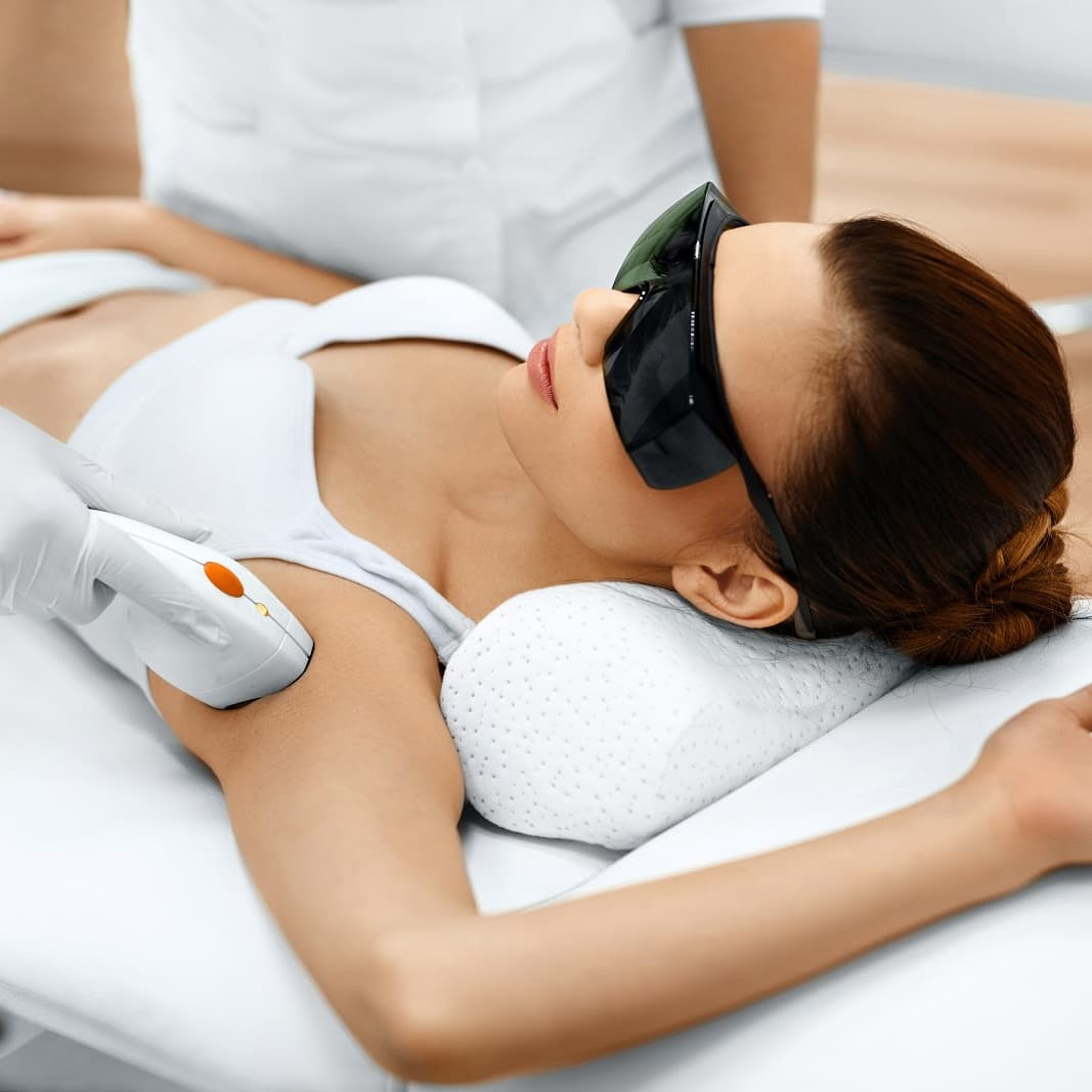 OPT Underarm Hair Removal (1 Session)