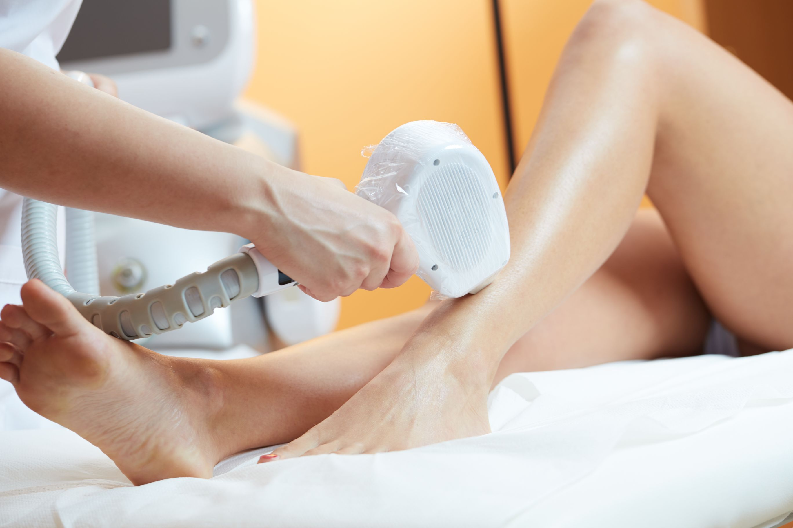 12 Sessions of Brazilian SHR Hair Removal + 1 Session of Brazillian Brightening Treatment / Half Arm or Leg SHR Hair Removal for 1 Person
