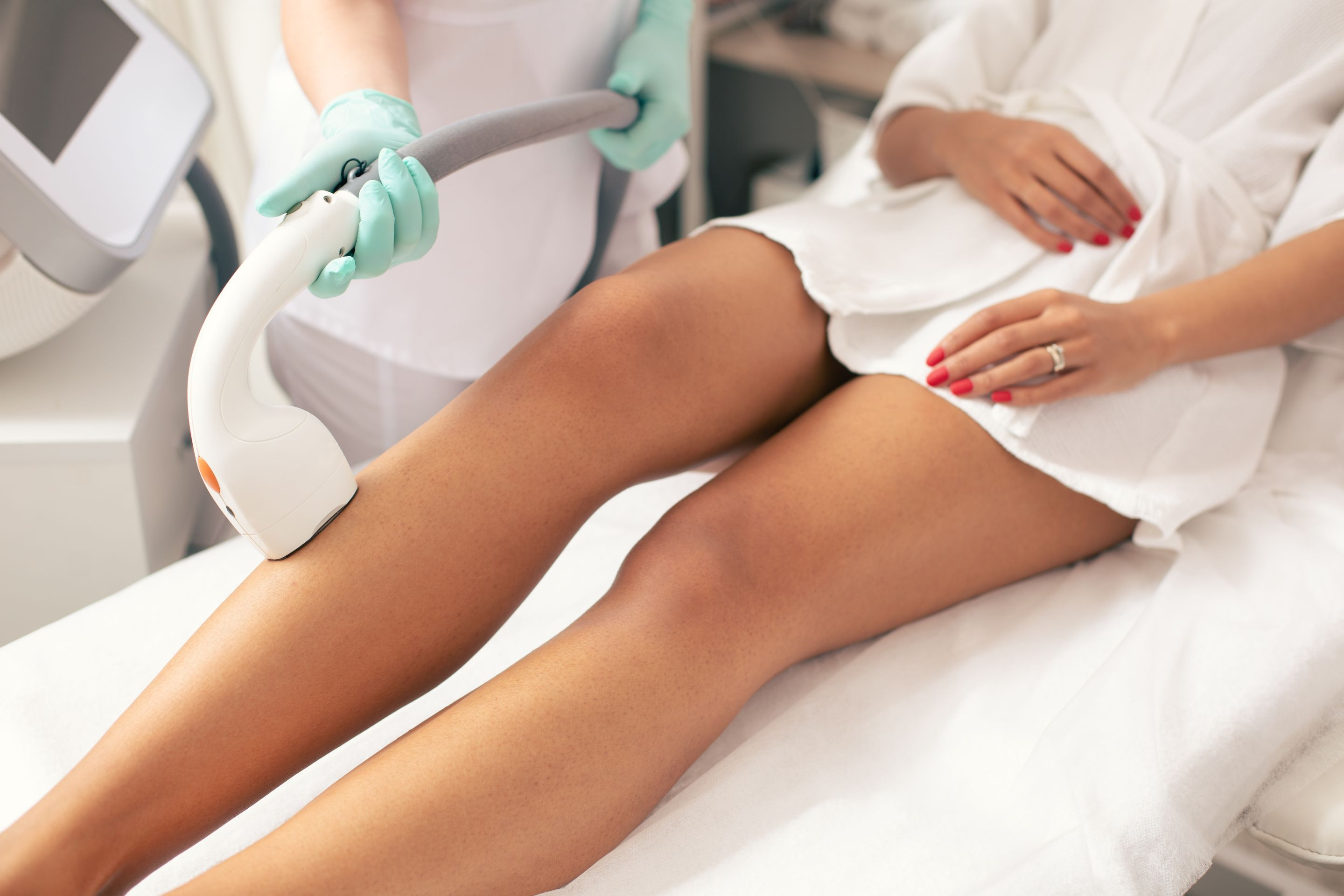 OPT Laser Brazilian Hair Removal (1 session)