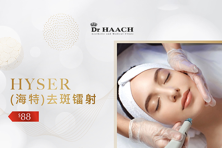 Hyser Treatment for 1 session